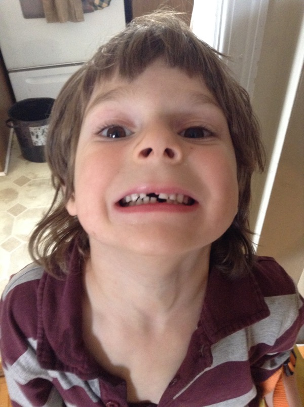 Oscar with two missing teeth in the kitchen.